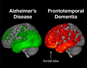 Brain image of FTD vs Alz: image from medschool.ucsf.edu